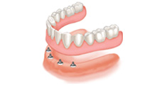 Anchoring Dentures